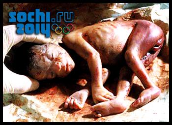 Аборты символ олимпиады в Сочи